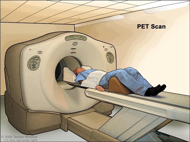 Chụp cắt lớp phát xạ PET (positron). Bệnh nhân nằm trên bàn trượt qua máy PET. Phần còn lại đầu và dây đeo màu trắng giúp bệnh nhân nằm yên. Một lượng nhỏ glucose phóng xạ (đường) được tiêm vào tĩnh mạch của bệnh nhân và máy quét tạo ra một bức tranh về nơi glucose được sử dụng trong cơ thể. Các tế bào ung thư xuất hiện sáng hơn trong hình vì chúng chiếm nhiều glucose hơn các tế bào bình thường.