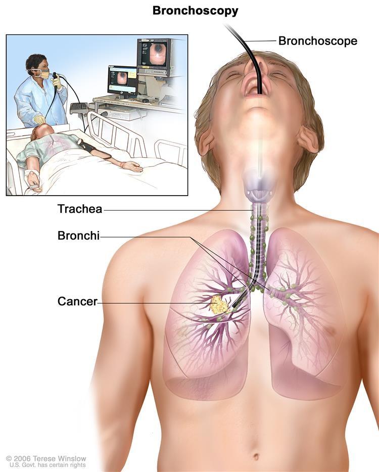Nội soi phế quản. Một ống soi phế quản được đưa qua miệng, khí quản và phế quản chính vào phổi, để tìm kiếm các khu vực bất thường. Một ống soi phế quản là một dụng cụ mỏng, giống như ống với ánh sáng và ống kính để xem. Nó cũng có thể có một công cụ cắt. Các mẫu mô có thể được lấy để kiểm tra dưới kính hiển vi cho các dấu hiệu bệnh.