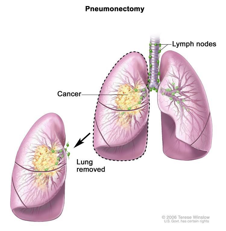 phẫu thuật cắt bỏ phổi