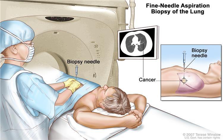 Sinh thiết chọc kim mịn của phổi. Bệnh nhân nằm trên bàn trượt qua máy chụp cắt lớp vi tính (CT), chụp ảnh x quang bên trong cơ thể. Hình ảnh X quang giúp bác sĩ nhìn thấy nơi mô bất thường nằm trong phổi. Một kim sinh thiết được đưa vào qua thành ngực và vào khu vực mô phổi bất thường. Một mảnh mô nhỏ được lấy ra qua kim và kiểm tra dưới kính hiển vi xem có dấu hiệu ung thư hay không.