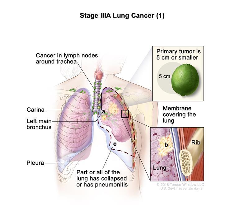 Ung thư phổi giai đoạn IIIA (1). Khối u có kích thước 5 cm hoặc nhỏ hơn và ung thư đã lan đến các hạch bạch huyết ở cùng phía của ngực với khối u nguyên phát. Các hạch bạch huyết bị ung thư là xung quanh khí quản hoặc động mạch chủ (không hiển thị), hoặc nơi khí quản phân chia thành phế quản. Ngoài ra, một hoặc nhiều trong số những điều sau đây có thể được tìm thấy: (a) ung thư đã lan đến phế quản chính, nhưng chưa lan đến carina; và / hoặc (b) ung thư đã lan đến màng bên trong bao phủ phổi; và / hoặc (c) một phần của phổi hoặc toàn bộ phổi đã sụp đổ hoặc bị viêm phổi (viêm phổi).