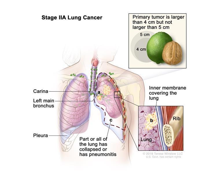 Ung thư phổi giai đoạn IIA. Khối u lớn hơn 4 cm nhưng không lớn hơn 5 cm. Ung thư chưa lan đến các hạch bạch huyết và một hoặc nhiều trường hợp sau đây có thể được tìm thấy: (a) ung thư đã lan đến phế quản chính, nhưng chưa lan đến carina; và / hoặc (b) ung thư đã lan đến màng bên trong bao phủ phổi; và / hoặc (c) một phần của phổi hoặc toàn bộ phổi đã sụp đổ hoặc bị viêm phổi (viêm phổi).
