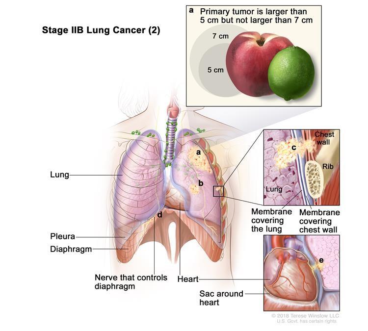 Ung thư phổi giai đoạn IIB (2). Ung thư đã không lan đến các hạch bạch huyết và một hoặc nhiều điều sau đây được tìm thấy: (a) khối u nguyên phát lớn hơn 5 cm nhưng không lớn hơn 7 cm; và / hoặc (b) có một hoặc nhiều khối u riêng biệt trong cùng một thùy của phổi như khối u chính; và / hoặc ung thư đã lan sang bất kỳ trường hợp nào sau đây: (c) thành ngực và / hoặc màng lót bên trong thành ngực, (d) dây thần kinh điều khiển cơ hoành và / hoặc (e) bên ngoài lớp mô của túi quanh tim.