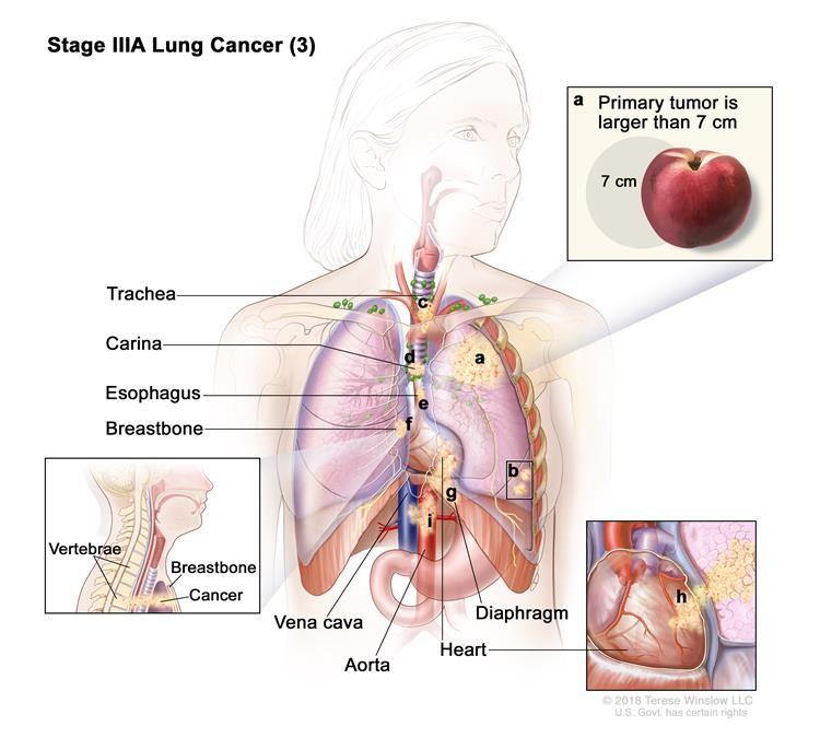 Ung thư phổi giai đoạn IIIA (3). Ung thư có thể đã lan đến các hạch bạch huyết ở cùng phía của ngực với khối u nguyên phát. Các hạch bạch huyết bị ung thư nằm trong phổi hoặc gần phế quản. Ngoài ra, một hoặc nhiều trong số những điều sau đây được tìm thấy: (a) khối u nguyên phát lớn hơn 7 cm; và / hoặc (b) có một hoặc nhiều khối u riêng biệt trong một thùy khác nhau của phổi với khối u nguyên phát; và / hoặc khối u có kích thước bất kỳ và ung thư đã lan đến bất kỳ trường hợp nào sau đây: (c) khí quản, (d) carina, (e) thực quản, (f) xương ức hoặc xương sống, (g) cơ hoành, (h) tim, (i) các mạch máu chính dẫn đến hoặc từ tim (động mạch chủ hoặc tĩnh mạch chủ) hoặc dây thần kinh điều khiển thanh quản (không hiển thị).