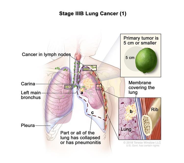 Ung thư phổi giai đoạn IIIB (1). Khối u nguyên phát là 5 cm hoặc nhỏ hơn và ung thư đã lan đến các hạch bạch huyết phía trên xương đòn ở cùng phía của ngực với khối u chính hoặc đến bất kỳ hạch bạch huyết nào ở phía đối diện của ngực là khối u chính. Ngoài ra, một hoặc nhiều trong số những điều sau đây có thể được tìm thấy: (a) ung thư đã lan đến phế quản chính, nhưng chưa lan đến carina; và / hoặc (b) ung thư đã lan đến màng bên trong bao phủ phổi; và / hoặc (c) một phần của phổi hoặc toàn bộ phổi đã sụp đổ hoặc bị viêm phổi (viêm phổi).
