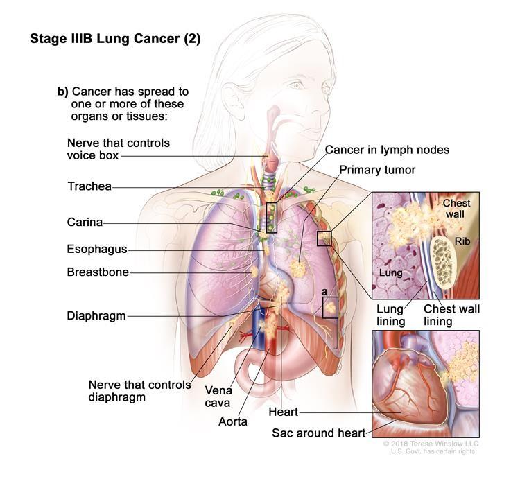 Ung thư phổi giai đoạn IIIB (2). Khối u có thể có kích thước bất kỳ và ung thư đã lan đến các hạch bạch huyết ở cùng phía của ngực với khối u nguyên phát. Các hạch bạch huyết bị ung thư là xung quanh khí quản hoặc động mạch chủ (không hiển thị), hoặc nơi khí quản phân chia thành phế quản. Ngoài ra, một hoặc nhiều trong số những điều sau đây được tìm thấy: (a) có một hoặc nhiều khối u riêng biệt trong cùng một thùy hoặc một thùy khác nhau của phổi với khối u nguyên phát; và / hoặc (b) ung thư đã lan sang bất kỳ trường hợp nào sau đây: thành ngực hoặc màng lót bên trong thành ngực, dây thần kinh điều khiển hộp thoại, khí quản, carina, thực quản, xương ức hoặc xương sống (không hiển thị), cơ hoành, dây thần kinh điều khiển cơ hoành, tim, các mạch máu chính dẫn đến hoặc từ tim (động mạch chủ hoặc tĩnh mạch chủ),