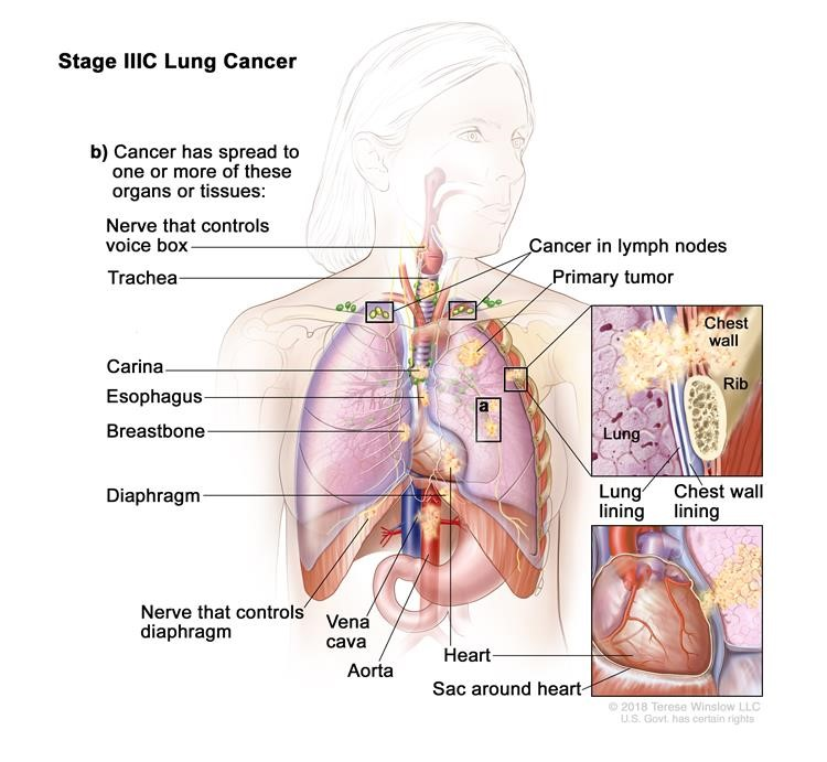 Ung thư phổi giai đoạn IIIC. Khối u có thể có kích thước bất kỳ và ung thư đã lan đến các hạch bạch huyết phía trên xương đòn ở cùng phía của ngực với khối u chính hoặc đến bất kỳ hạch bạch huyết nào ở phía đối diện của ngực là khối u chính. Ngoài ra, một hoặc nhiều trong số những điều sau đây được tìm thấy: (a) có một hoặc nhiều khối u riêng biệt trong cùng một thùy hoặc một thùy khác nhau của phổi với khối u nguyên phát; và / hoặc (b) ung thư đã lan sang bất kỳ trường hợp nào sau đây: thành ngực hoặc màng lót bên trong thành ngực, dây thần kinh điều khiển hộp thoại, khí quản, carina, thực quản, xương ức hoặc xương sống (không hiển thị), cơ hoành, dây thần kinh điều khiển cơ hoành, tim, các mạch máu chính dẫn đến hoặc từ tim (động mạch chủ hoặc tĩnh mạch chủ) hoặc lớp mô ngoài của túi quanh tim.