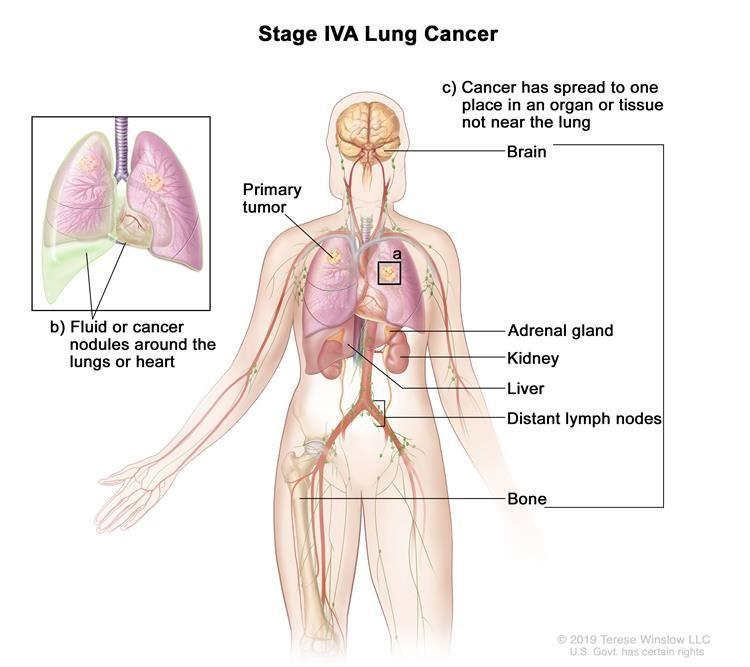 Ung thư phổi giai đoạn IVA.Khối u có thể có kích thước bất kỳ và ung thư có thể đã lan đến các hạch bạch huyết.Một hoặc nhiều điều sau đây được tìm thấy: (a) có một hoặc nhiều khối u trong phổi không có khối u nguyên phát;và / hoặc (b) ung thư được tìm thấy trong chất lỏng xung quanh phổi hoặc tim hoặc có các nốt ung thư trong lớp lót quanh phổi hoặc túi quanh tim;và / hoặc (c) ung thư đã lan đến một nơi trong một cơ quan hoặc mô không gần phổi, chẳng hạn như não, tuyến thượng thận, thận, gan hoặc xương hoặc đến một hạch bạch huyết không gần phổi.