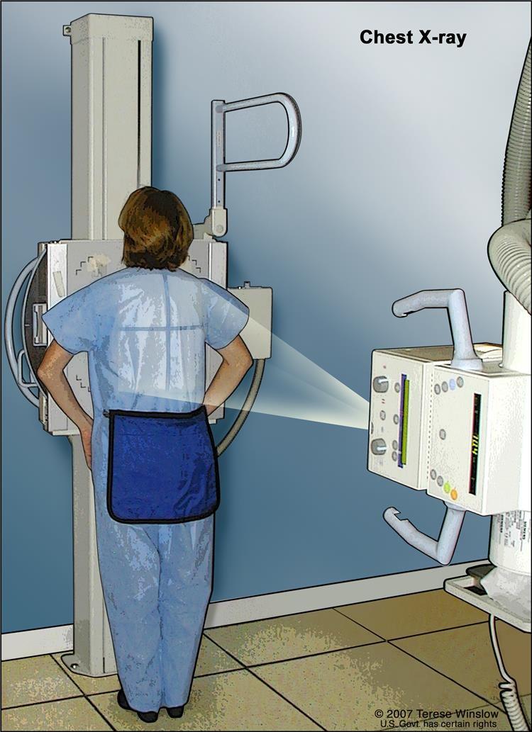 X-quang ngực. X-quang được sử dụng để chụp ảnh các cơ quan và xương của ngực. Tia X xuyên qua bệnh nhân lên phim.