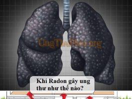 khi radon gay ung thu phoi (1)