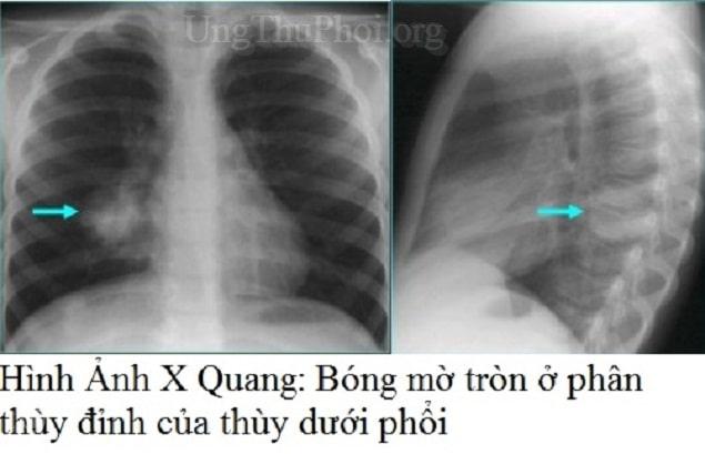 not hach o phoi la gi, not hach duoc dieu tri nhu the nao - ung thu phoi (1)