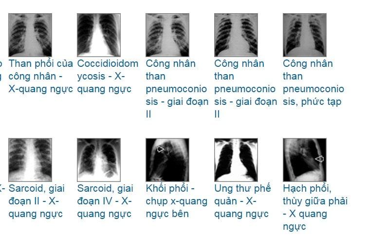 X-quang nguc la gi