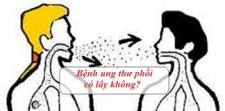benh ung thu phoi co lay khong