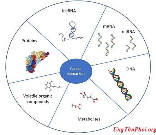biomarkers dau an sinh hoc ung thu co trong chat long co the bao gom mau nuoc bot nuoc tieu hoac hoi tho