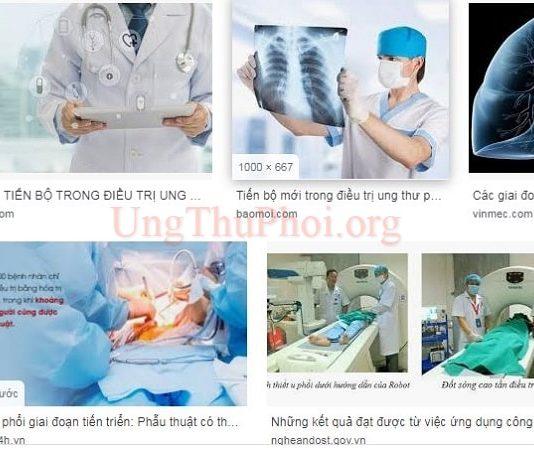 nhung tien bo trong nghien cuu ung thu phoi la gi (1)
