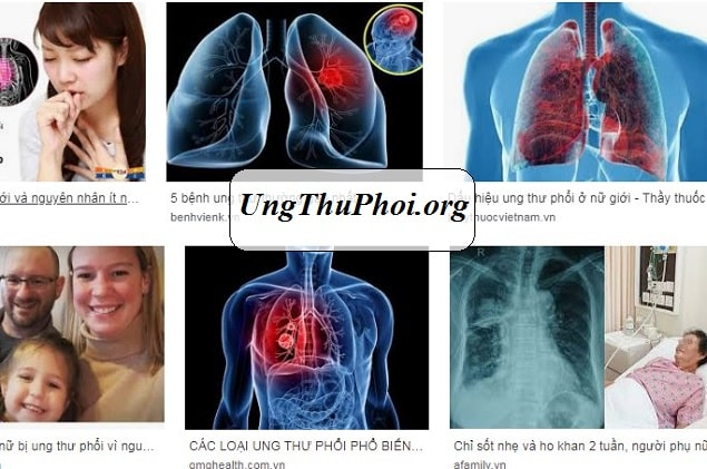su that dang so ve ung thu phoi o phu nu (1)