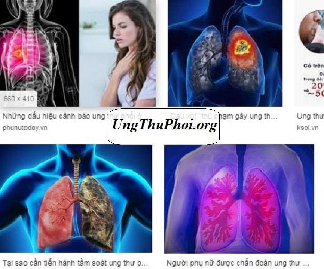 su that dang so ve ung thu phoi o phu nu (2)