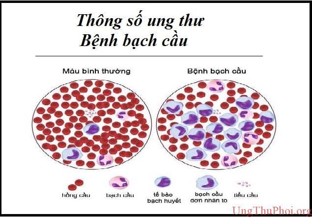 thong so ung thu - benh bach cau