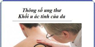 thong so ung thu - khoi u ac tinh cua da