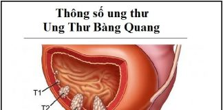 thong so ung thu - ung thu bang quang