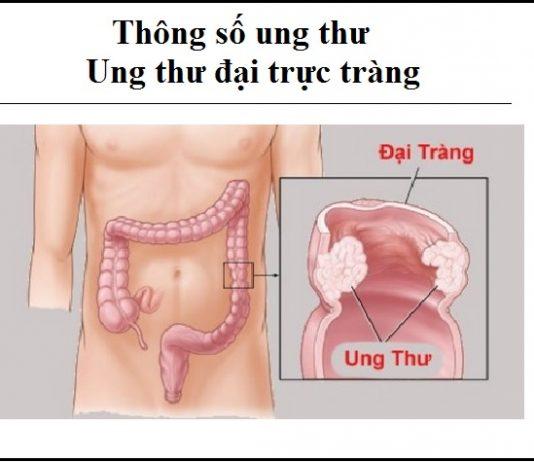 thong so ung thu - ung thu dai truc trang