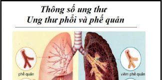 thong so ung thu - ung thu phoi va phe quan