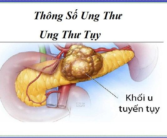 thong so ung thu - ung thu tuy