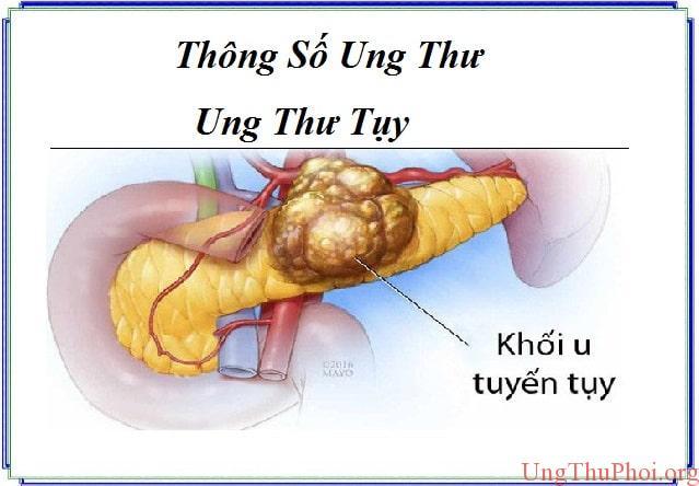 thong so ung thu - ung thu tuy