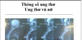 thong so ung thu - ung thu vu o nu