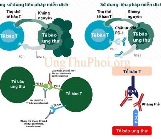 thuoc mien dich mo rong cac lua chon dieu tri cho benh ung thu phoi tien trien (1)