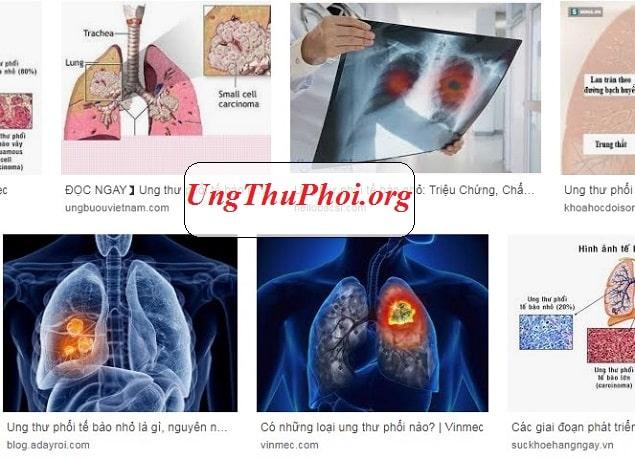 ung thu phoi te bao nho la gi Nguyen nhan trieu chung benh ra sao (3)