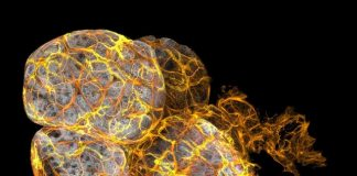 Phát hiện tế bào miễn dịch trong điều trị ung thư vú - 1
