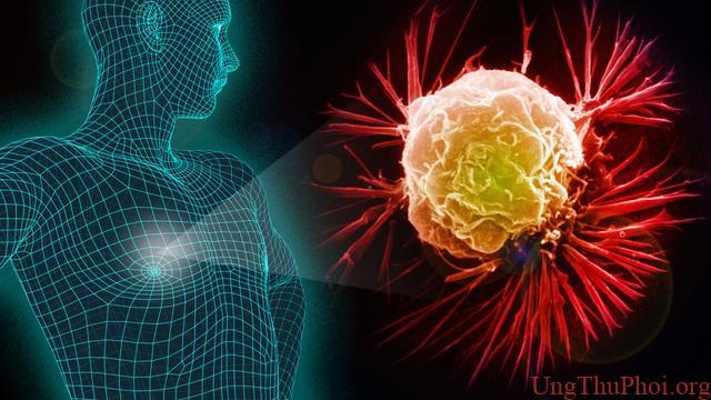 Loại ung thư nào khiến bệnh nhân dễ tử vong nhất khi mắc Covid-19? - 2