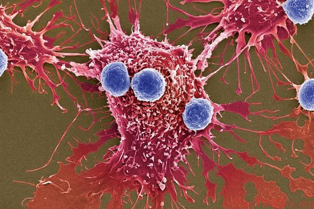 Nghiên cứu mới: Tiêu diệt ung thư bằng...bom vi khuẩn - 1