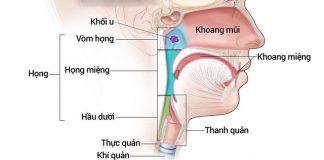 Mách bạn một số dấu hiệu cảnh báo ung thư tai mũi họng - 1