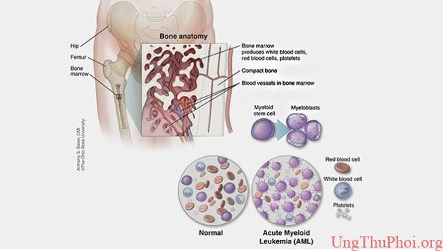 Hút thuốc làm giảm thời gian sống sau điều trị của bệnh nhân ung thư - 1
