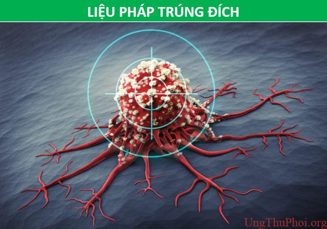 Các phương pháp điều trị ung thư khác nhau như thế nào? - 7