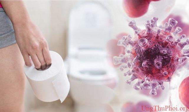 Bác sĩ cảnh báo 5 kiểu người có nguy cơ mắc ung thư đại tràng rất cao - 4