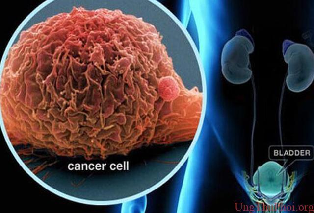 Hy vọng mới cho bệnh nhân ung thư di căn từ phương pháp kép - 1