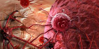 """Lần đầu phát hiện gen di truyền """"điều khiển"""" quá trình di căn của ung thư - 1"""
