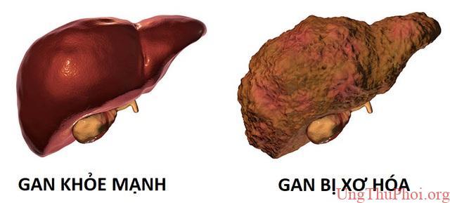 Không chỉ có rượu bia, bạn có thể mắc ung thư gan vì những yếu tố này - 4