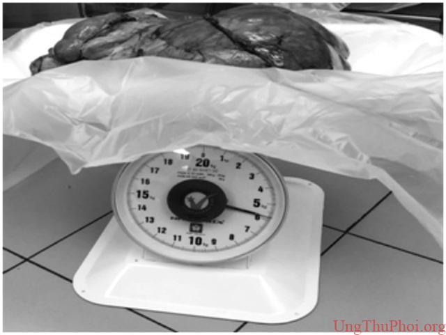 Đau tức bụng vào viện, người đàn ông phát hiện khối u nặng 6kg - 2