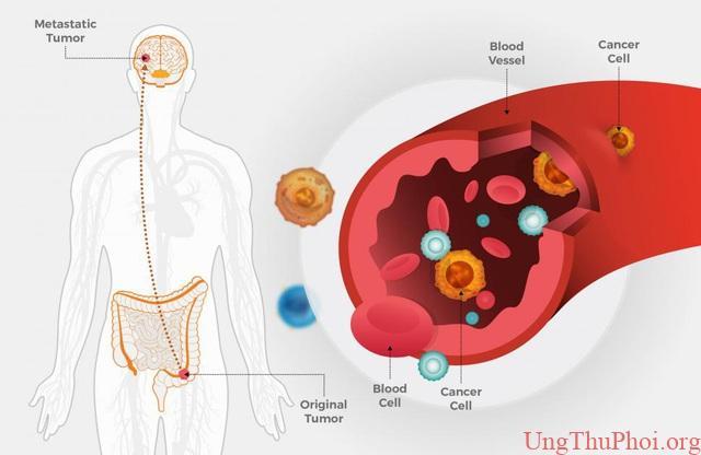 """Lần đầu phát hiện gen di truyền """"điều khiển"""" quá trình di căn của ung thư - 3"""