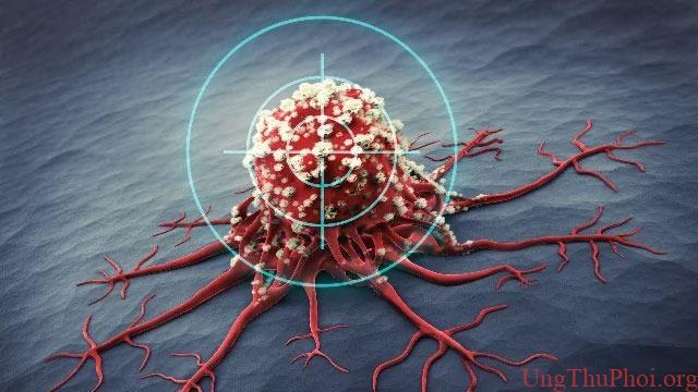 Xây dựng thành công mô hình dự đoán trước kết quả điều trị ung thư - 1