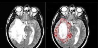 Phát hiện mới: Loại ung thư kháng được hóa, xạ trị lại sợ… thuốc sốt rét - 1