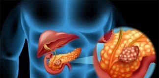 Ung thư tụy, căn bệnh nguy hiểm, rất dễ bị bỏ qua dấu hiệu sớm - 1