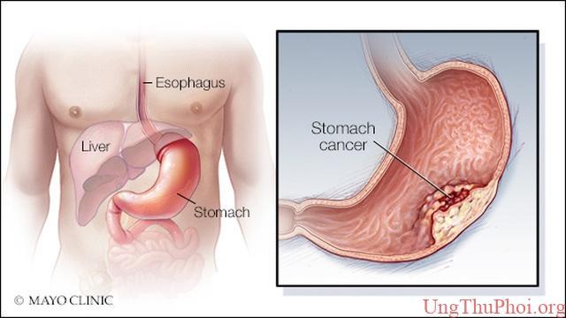 Có 5 dấu hiệu này bạn nên nghĩ đến ung thư dạ dày - 1