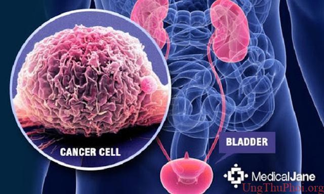 Phát hiện mới về mối liên quan giữa ung thư bàng quang và hút thuốc lá - 1