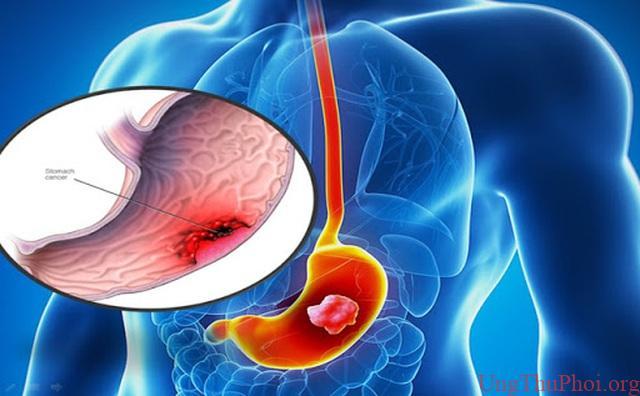 Các nhà khoa học Nhật Bản giải mã lý do người Châu Á dễ mắc ung thư dạ dày - 1