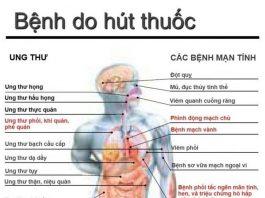 Hút thuốc lá, nguy cơ mắc ung thư phổi cao gấp hàng chục lần - 1